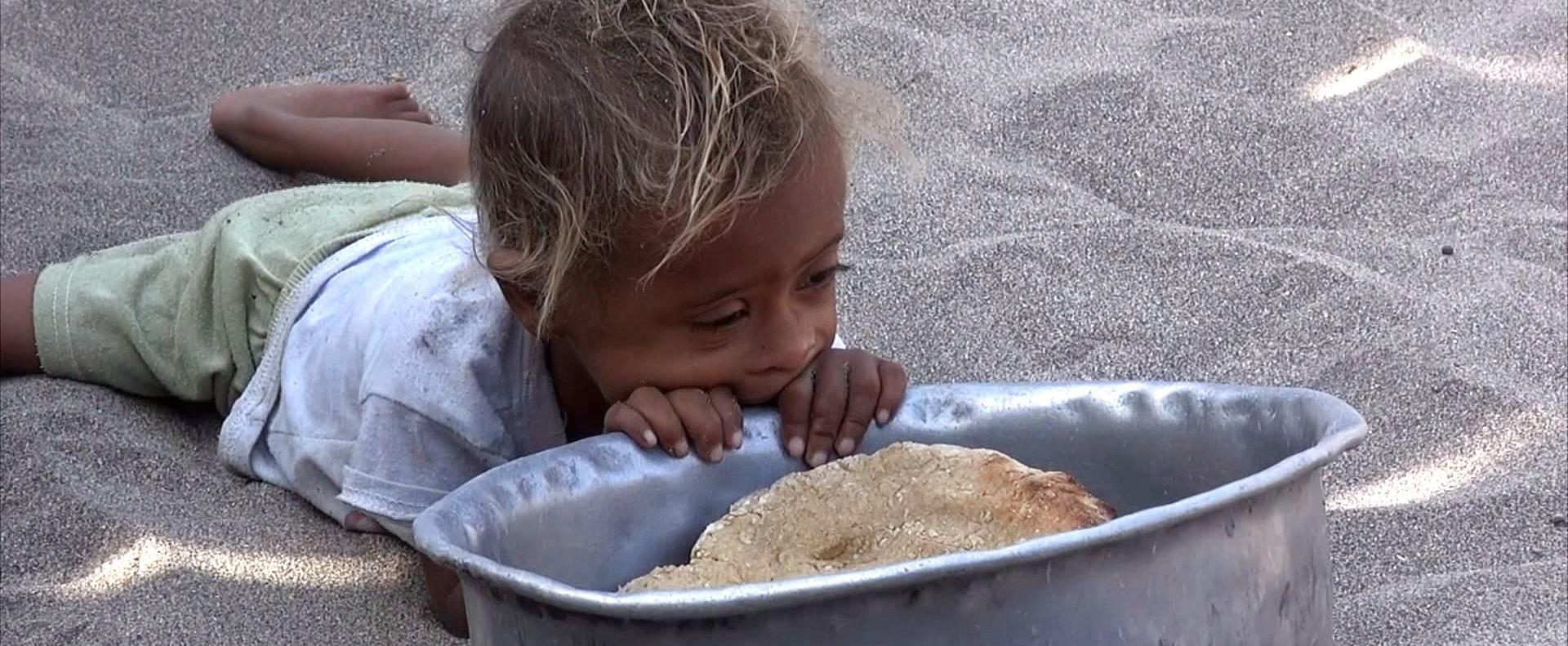 Голод детей в Йемене