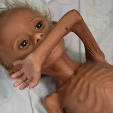 2,2 млн детей в Йемене голодают