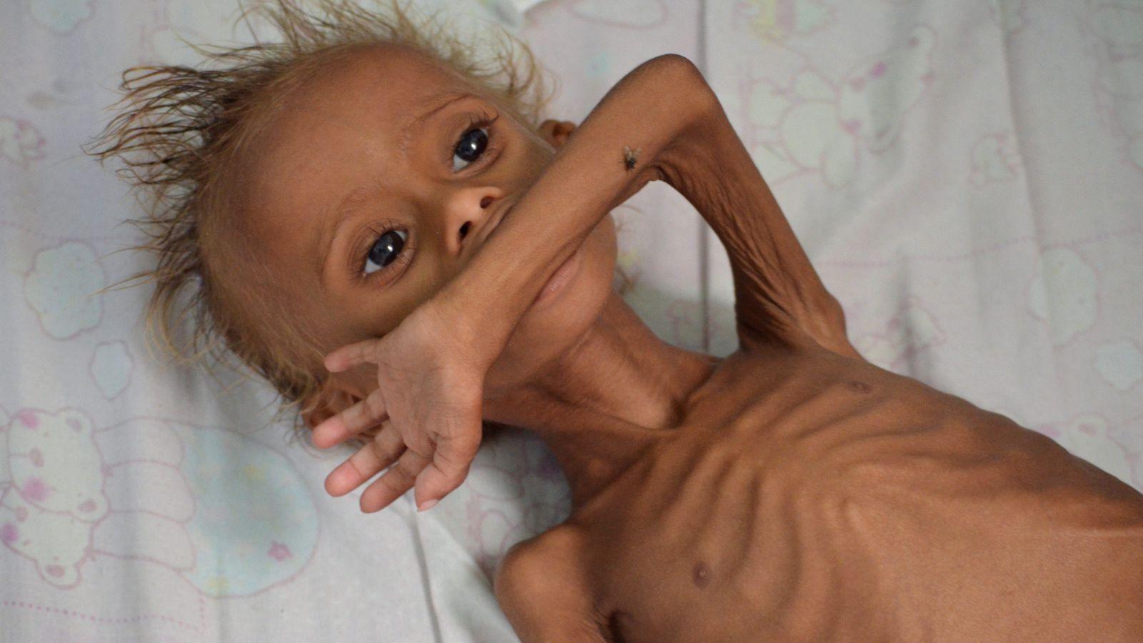Заставка для - 2,2 млн детей в Йемене голодают